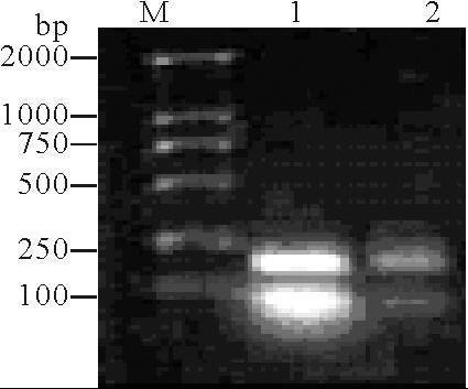 Ⅱ类中的限制性内切酶在分子克隆中得到了广泛应用