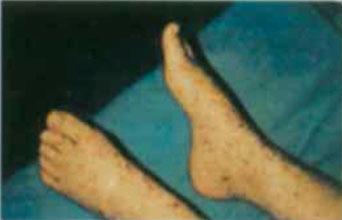 在立克次体病地方性流行区,虱子,跳蚤的侵染或蜱的叮咬等病史有助于诊