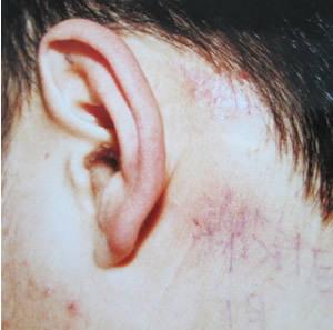 這些局部因素的刺激,都可導致瘢痕的增生圖片