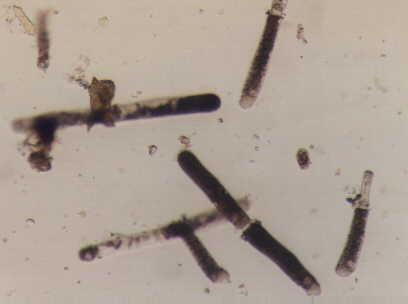 孢子虫纲的动物细胞结构很简单