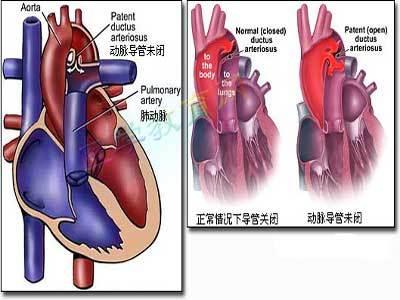 心脏内部血管结构示意图